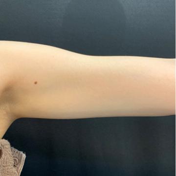 藤井クリニックの痩身、メディカルダイエットの症例写真[ビフォー]