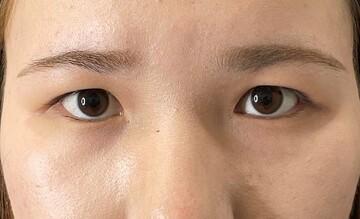 東京美容外科 横浜院の目・二重整形の症例写真[ビフォー]