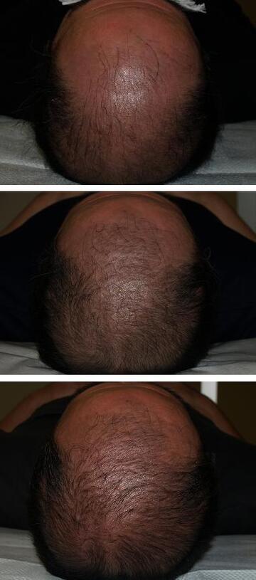 タウン形成外科クリニックの薄毛治療・AGA・発毛の症例写真