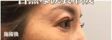 西宮SHUHEI美容クリニックの症例写真[アフター]