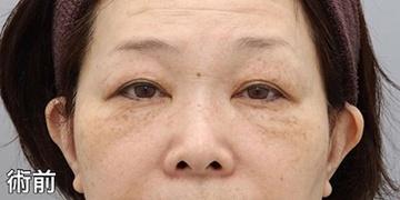 銀座みゆき通り美容外科大阪院のシミ治療(シミ取り)・肝斑・毛穴治療の症例写真[ビフォー]