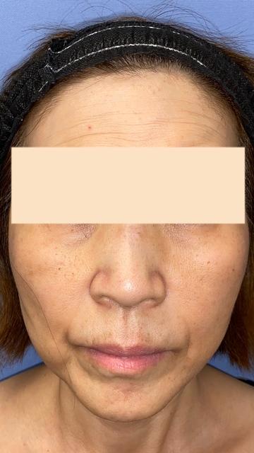 湘南美容クリニック 池袋西口院の顔のしわ・たるみの整形(リフトアップ手術)の症例写真[アフター]
