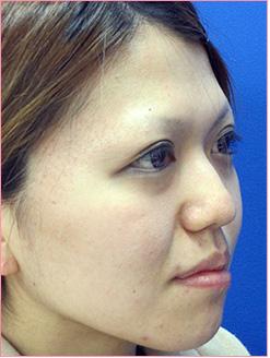 ■隆鼻術+鼻尖縮小術の症例写真[ビフォー]