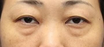 新宿ラクル美容外科クリニックの目元の整形、くま治療の症例写真[ビフォー]