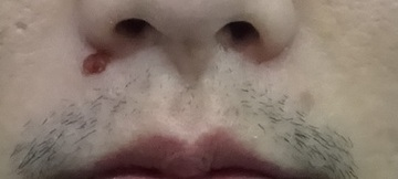 TCB 東京中央美容外科のホクロ除去・あざ治療・イボ治療の症例写真[ビフォー]