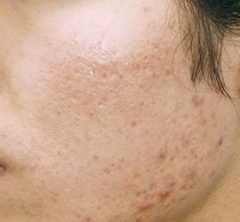 オザキクリニック LUXE新宿のニキビ治療・ニキビ跡の治療の症例写真[ビフォー]