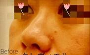 ルラ美容クリニック高田馬場院の症例写真[ビフォー]