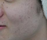 ゆり皮膚科のニキビ治療・ニキビ跡の治療の症例写真[アフター]
