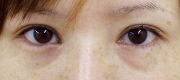 アイエス美容クリニックの目元整形・クマ治療の症例写真[ビフォー]