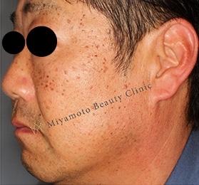 みやもと美容クリニックのホクロ除去・あざ治療・イボ治療の症例写真[ビフォー]