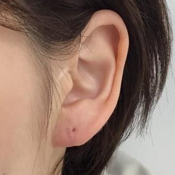 東郷美容形成外科 福岡の傷跡治療、ケロイドの症例写真[アフター]
