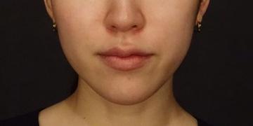SELECT CLINIC(セレクトクリニック)のシワ・たるみ(照射系リフトアップ治療)の症例写真[ビフォー]