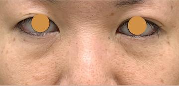 ウェンデルクリニックの目元の整形、くま治療の症例写真[ビフォー]
