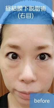 大西皮フ科形成外科医院の目元の整形、くま治療の症例写真[ビフォー]