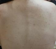 広島プルミエクリニックのニキビ治療・ニキビ跡の治療の症例写真[ビフォー]