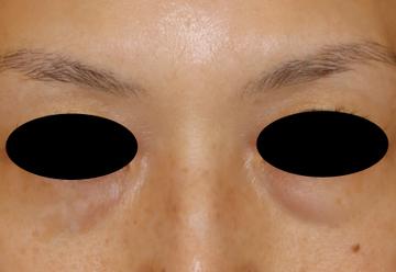 すなおクリニックの目・二重の整形の症例写真[ビフォー]