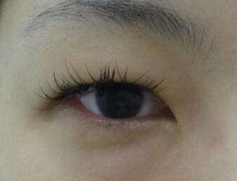 麗ビューティー皮フ科クリニックの目・二重の整形の症例写真[ビフォー]