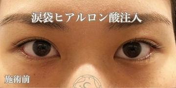 KOBE CLINIC 美容皮膚科・美容クリニックの目元整形・クマ治療の症例写真[ビフォー]