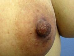 ■分裂乳首の症例写真[アフター]