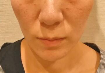 フォーシーズンズ美容皮膚科/美容外科の顔の整形(輪郭・顎の整形)の症例写真[アフター]