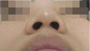 美容外科・美容皮膚科ゼロクリニック銀座の鼻の整形の症例写真[ビフォー]