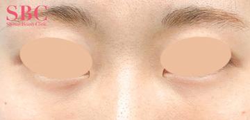 湘南美容クリニック高松院の目元の整形、くま治療の症例写真[アフター]