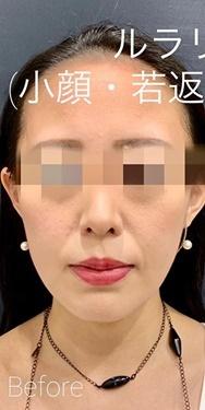 ルラ美容クリニック高田馬場院の顔のしわ・たるみの整形(リフトアップ手術)の症例写真[ビフォー]