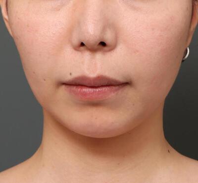人中短縮&口角挙上の症例写真[ビフォー]