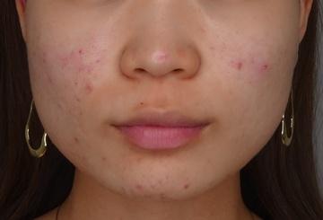 TCB東京中央美容外科の輪郭・顎の整形の症例写真[ビフォー]