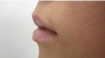 東京美容外科の口もと、唇の整形の症例写真[ビフォー]