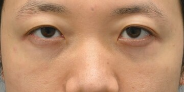 湘南美容クリニック 品川院の目元整形・クマ治療の症例写真[ビフォー]