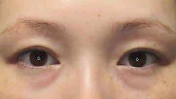 ウィクリニック 大宮院の目元整形・クマ治療の症例写真[ビフォー]