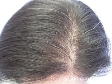 札幌中央クリニックの薄毛治療の症例写真[アフター]