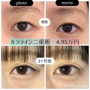 ルラ美容クリニックの目・二重整形の症例写真