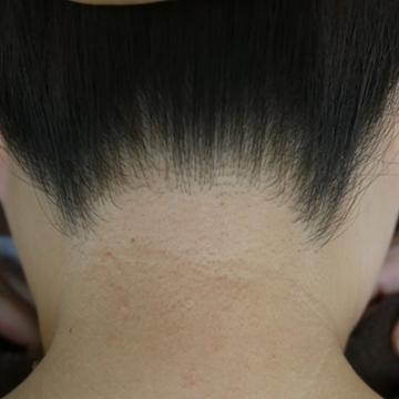 ふじもと皮フ科クリニックの医療レーザー脱毛の症例写真[アフター]
