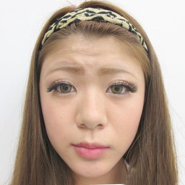 水の森美容外科の鼻の整形の症例写真[ビフォー]