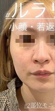 ルラ美容クリニックの顔のしわ・たるみの整形の症例写真[ビフォー]