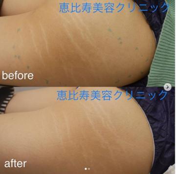 恵比寿美容クリニックの傷跡治療、ケロイドの症例写真