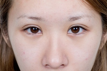 新宿中央クリニックの目・二重の整形の症例写真[アフター]