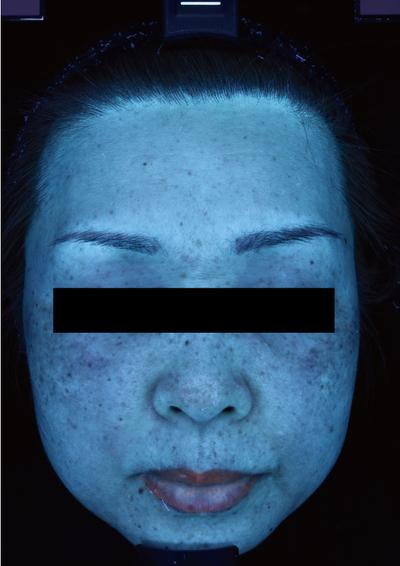 肝斑治療(ピコトーニング)の症例写真[ビフォー]