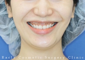 新宿ラクル美容外科クリニックの口もと、唇の整形の症例写真[ビフォー]