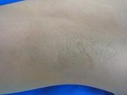 新宿フェミークリニック/美容皮膚科の症例写真[ビフォー]