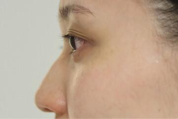 東京イセアクリニック銀座院の鼻の整形の症例写真[ビフォー]