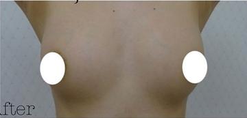 ジョウクリニックの豊胸・胸の整形の症例写真[アフター]