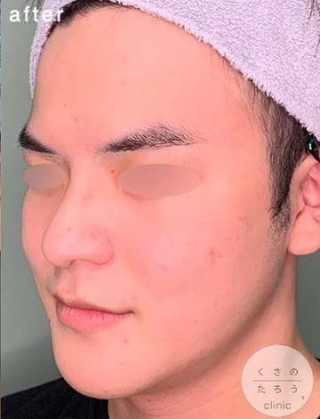 くさのたろうクリニックの輪郭・顎の整形の症例写真[アフター]