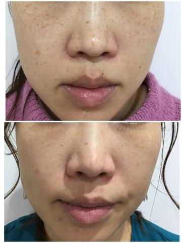 北浜ローズガーデンスキンクリニックのシミ治療(シミ取り)・肝斑・毛穴治療の症例写真
