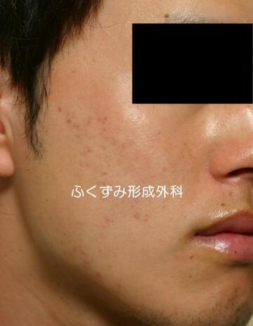 ふくずみ皮フ科形成外科のニキビ治療・ニキビ跡の治療の症例写真[アフター]