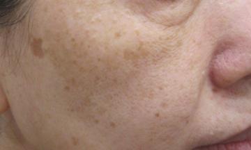 エルクリニックのシミ取り・肝斑・毛穴治療の症例写真[ビフォー]