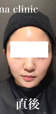 CHRISTINA clinic GINZA(クリスティーナクリニック銀座)のシワ・たるみ(照射系リフトアップ治療)の症例写真[アフター]