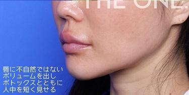 唇ヒアルロン酸注入&ボトックス注入の症例写真[アフター]